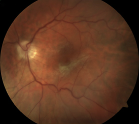 Epiretinal Membranes Can Affect The Macula Causing Decreased Central Vision